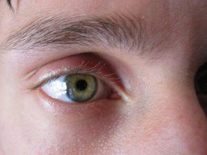 doenca-na-cornea-aumenta-riscos-no-transito-diz-pesquisa